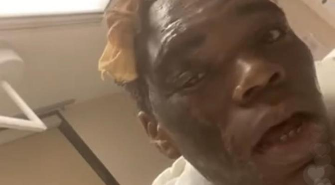 Internet star #RollingRay in HOSPITAL with SEVERE burns after his WIG caught on fire! [vid]